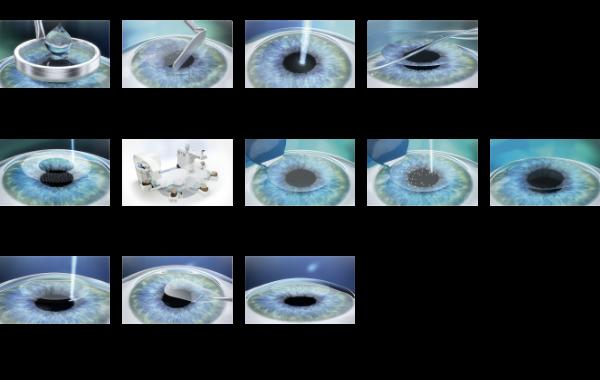 Laser Vision Correction Techniques